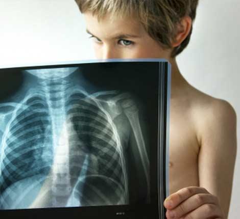 Ребенок заболел пневмонией