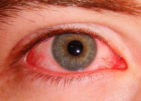 Аллергический конъюнктивит - состояние, когда воспаляется соединительнотканная оболочка (конъюнктива), которая покрывает глаз и веко изнутри.
