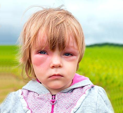 После прибытия скорой помощи следует выполнять все инструкции врача. В тяжелых случаях детям с антигионевротическим отеком ставят Преднизолон, Адреналин, дают кислородную маску и госпитализируют в стационар.