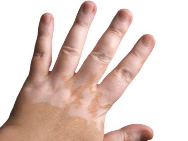 Витилиго у детей и взрослых проявляется как белые пятна на лице, теле.